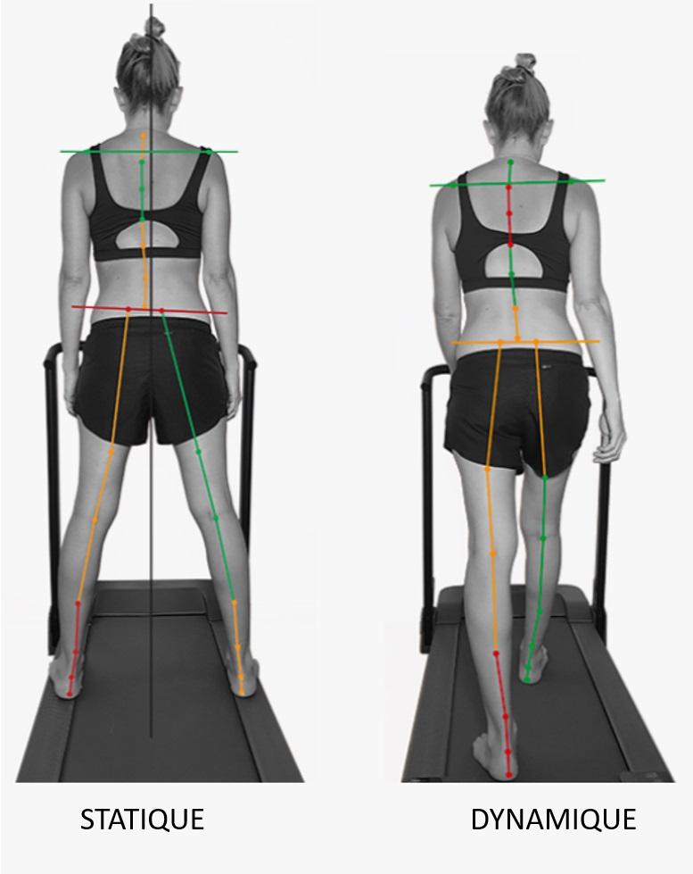 troubles postural dynamique adulte, posturologie, podologie, ostéopathie, logiciel de motion capture